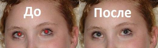 Красные глаза2